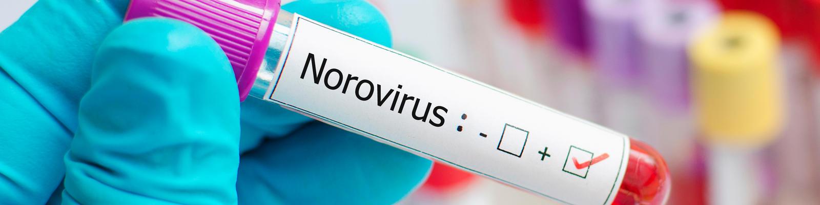 Demystifying the Myths of Norovirus (Photo: Jarun Ontakrai/Shutterstock)